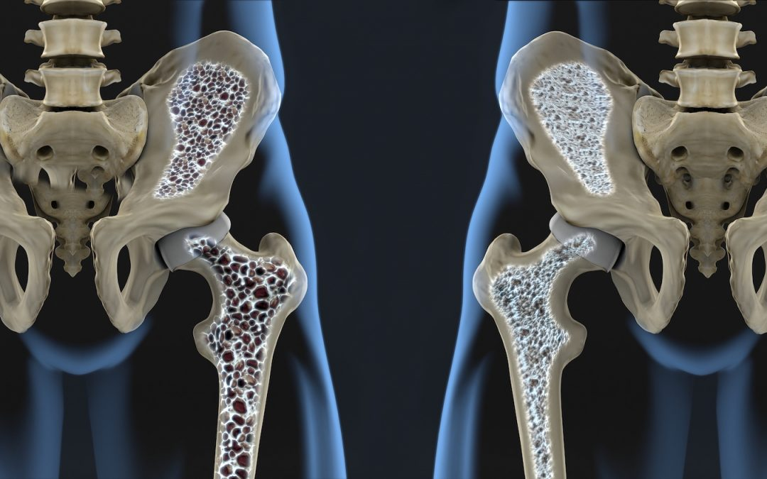 burial insurance with osteoporosis