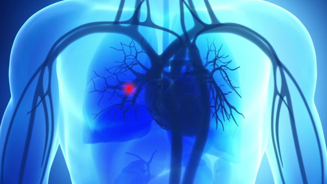 how to buy burial insurance pulmonary embolism